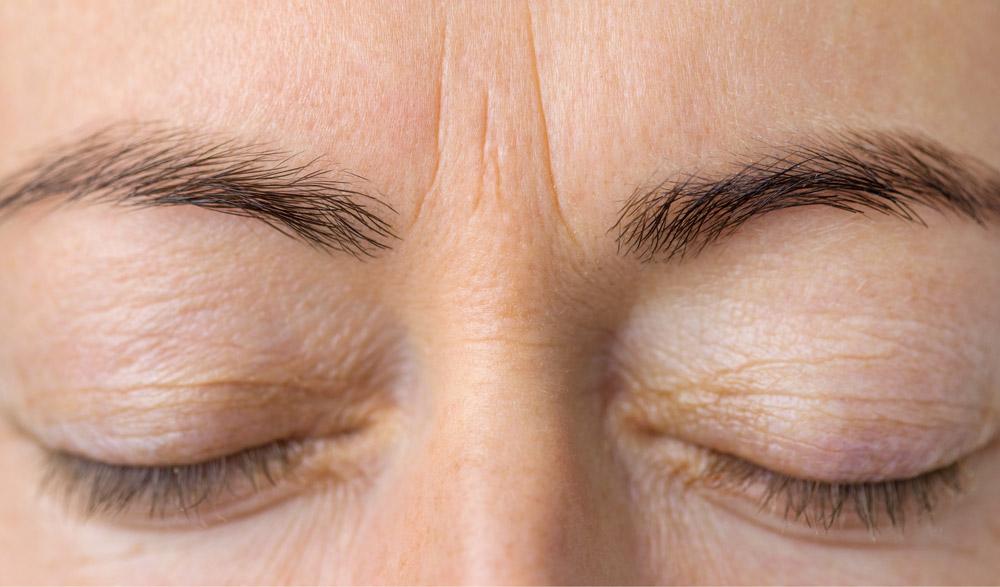chirurgie esthétique du visage à Saint-Brieuc : avant